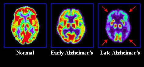 알츠하이머 단계